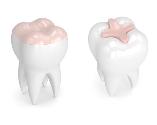 Dental inlays and onlays models by dentistPortland City Dental